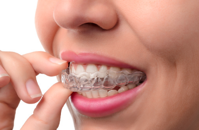 gouttière dentaire sur mesure