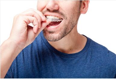 comment utiliser une gouttière dentaire
