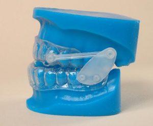orthèse d'avancement mandibulaire