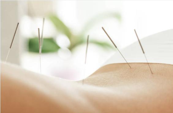 les avantages d'une séance d'acupuncture sur le bruxisme