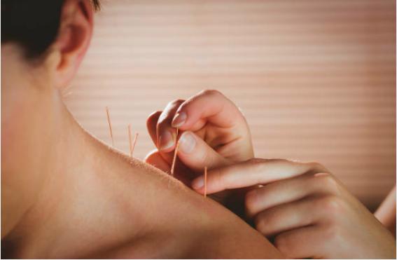 les bienfaits de l'acupuncture sur le bruxisme